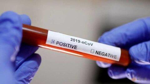 ۱۸ بیمار مبتلا به کرونا در نطنز شناسایی شد