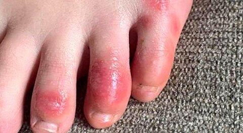 انگشت پای کوویدی؛ عارضه طولانی مدت بیماری کرونا