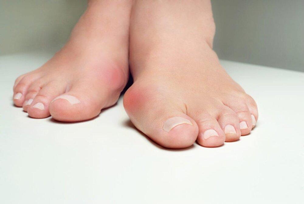 انحراف شست پا (bunion) از علائم تا درمان