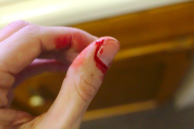 توقف سریع خونریزی پس از سانحه/تولید ریز روبات اوریگامی برای تصفیه آب