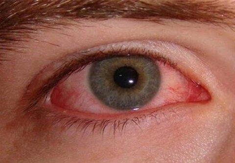 محافظت از چشم ها چه نقشی در کاهش ابتلا به کرونا دارد؟