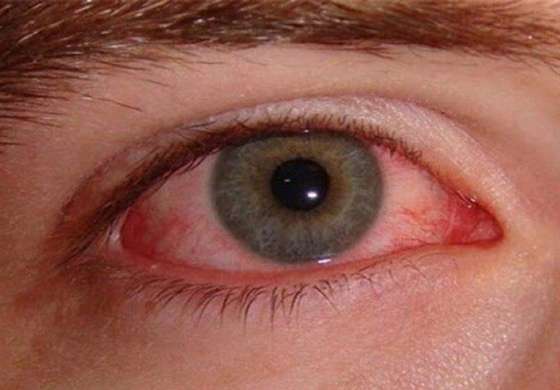 خطر جدیِ ویروس کرونا برای چشمها