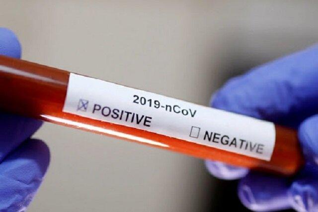 تشخیص ۲۰ دقیقهای ویروس کرونا