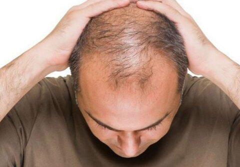 ریزش مو؛ عارضه ناشی از استرس کرونا