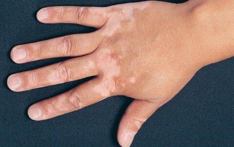 بیماری ویتیلیگو چیست و چگونه درمان میشود؟