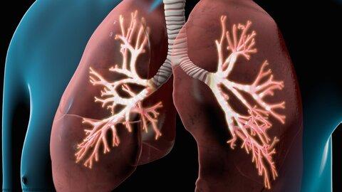کرونا ویروس و بیماری مزمن انسداد ریه