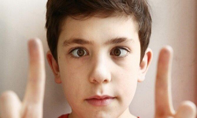 آغاز برنامه کشوری پیشگیری از تنبلی چشم ویژه کودکان ۳ تا ۶ سال
