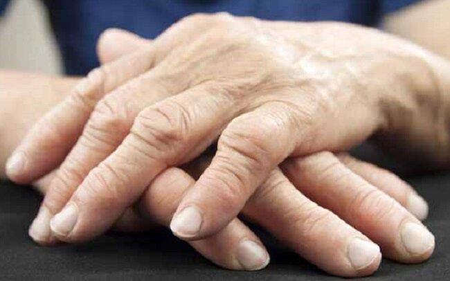 آرتریت روماتوئید خطر ابتلا به دیابت نوع دوم را افزایش میدهد