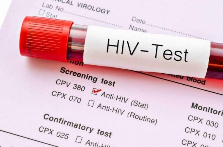 سرکوب اچ ای وی با یک روش جدید