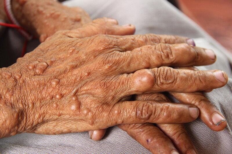 نوروفیبروماتوز، در صدر بیماریهای نادر ایران
