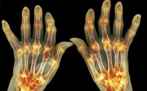 التهاب مفاصل چگونه درمان میشود؟