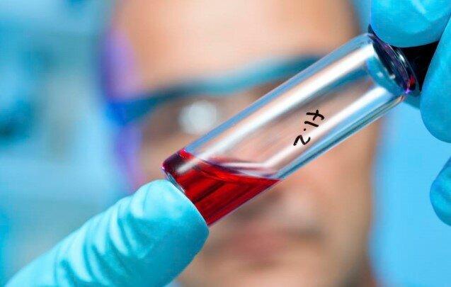 درمان کرونا به کمک سلول های بنیادی بند ناف