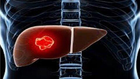 ارتباط بین بیماری کبد چرب و سرطان کبد کشف شد