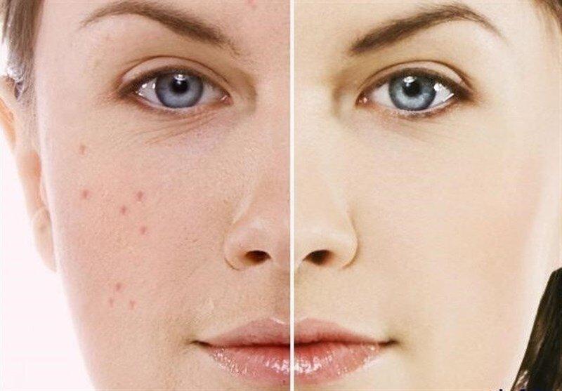 چگونه از طریق رنگ پوست میتوان به نوع بیماری پی برد؟