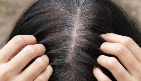 """نقش """"بیوتن"""" و """"بپانتن"""" در سلامت پوست و مو چیست؟"""