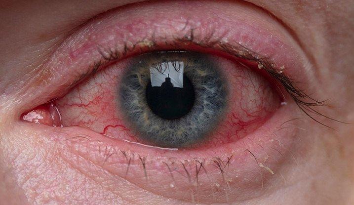 کرونای شدید باعث بروز ناهنجاریهای چشمی میشود