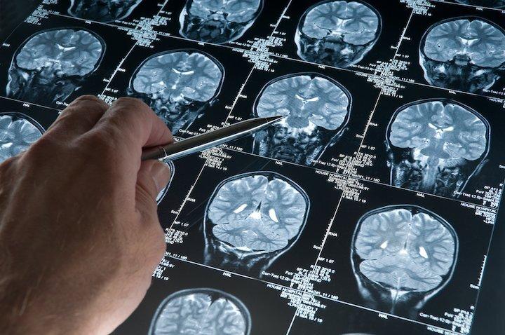 آشنایی با آسیبهای مغزی و روشهای درمان آن