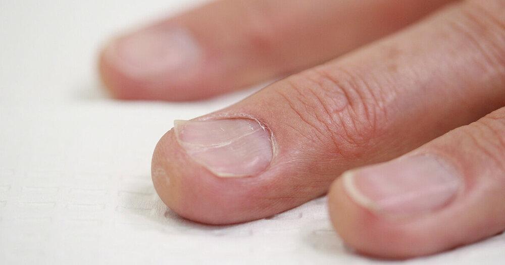 کمبود روی منجر به دیستروفی ناخن میشود