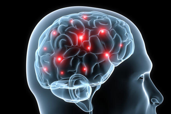 نوروتراپی چیست و چه کاربردهایی دارد؟