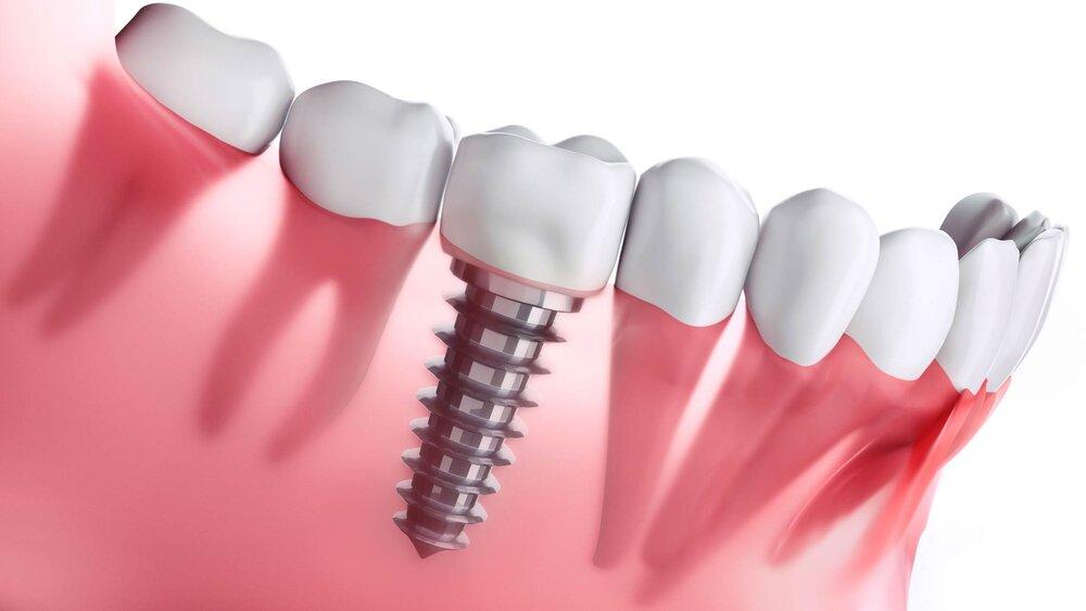 ایمپلنت دندان قیمت
