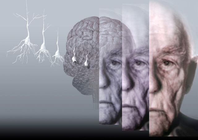 ارتباط بین درد مزمن و خطر ابتلا به زوال عقل چیست؟