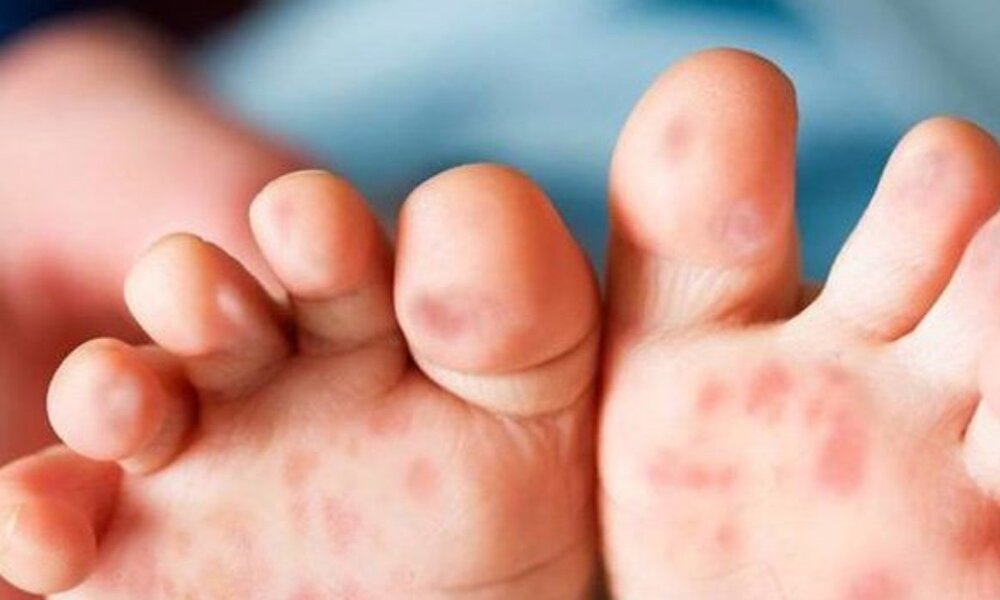 مشکلات پوستی دوران کودکی چیست؟