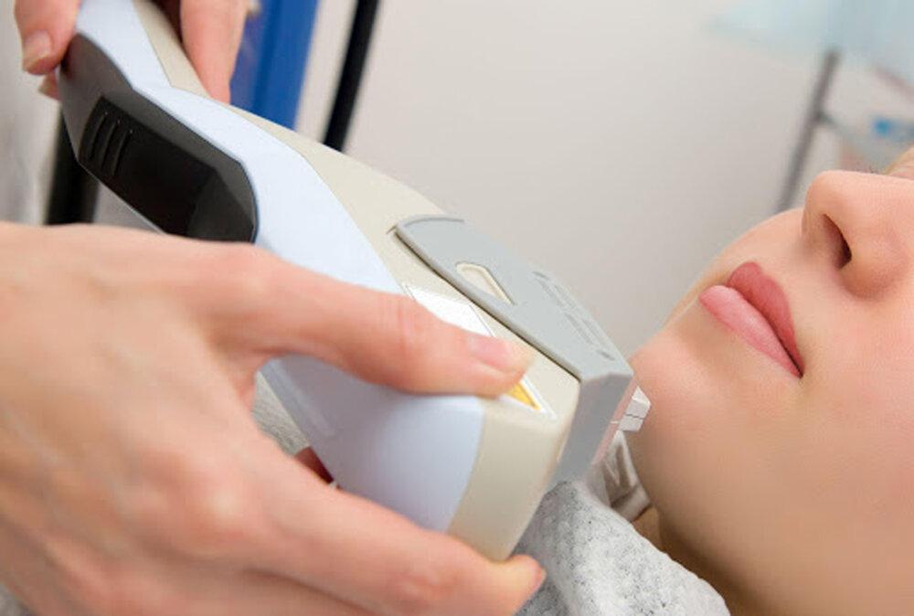بومیسازی دستگاه لیزر پوست و مو