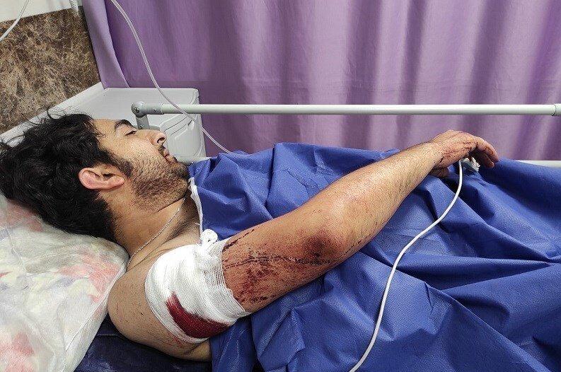 زورگیری خونین از یک عکاس خبری در تهران