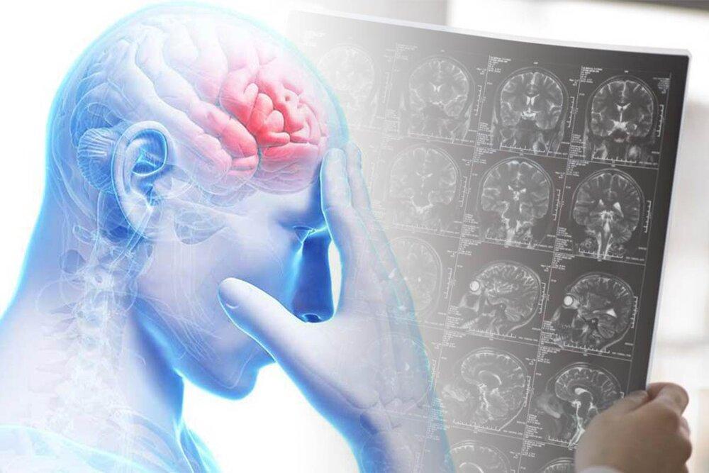 تومور مغزی چگونه بر کیفیت زندگی افراد تاثیر میگذارد؟