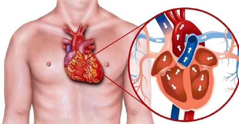 روش های درمان بیماری قلبی