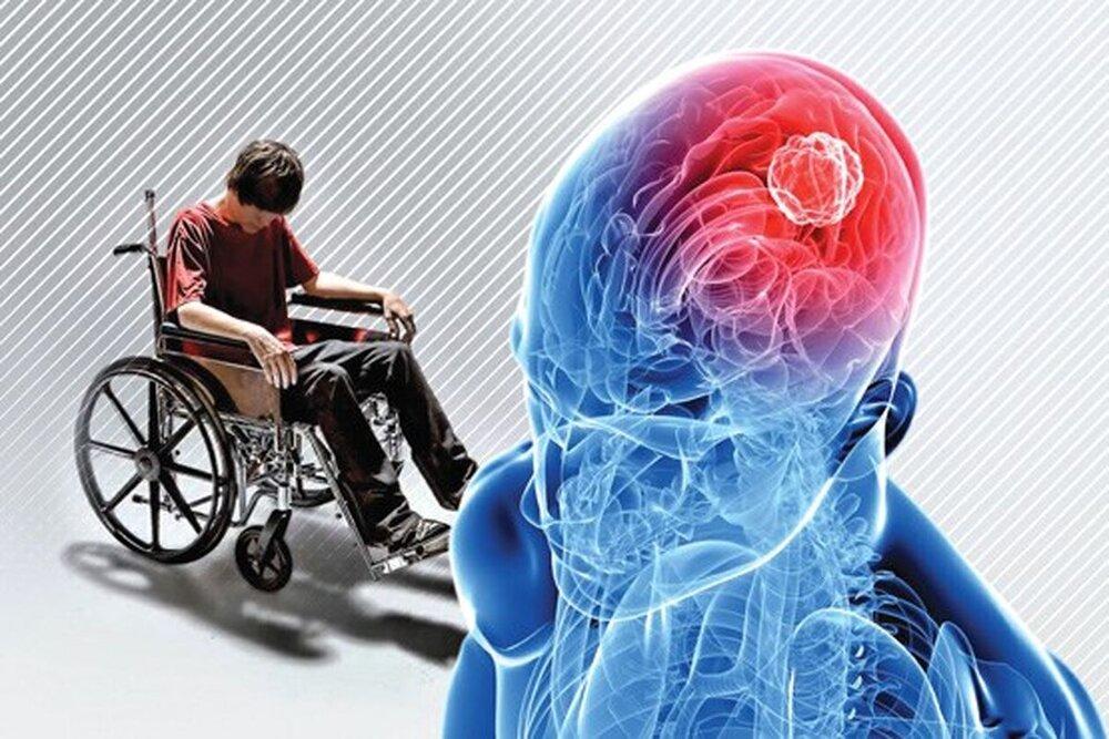 آسیبهای روحی دوران کودکی روی MS اثر دارد