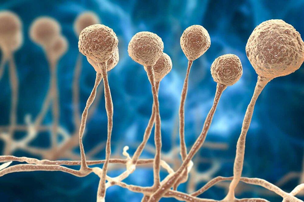 قارچ سیاه چیست؟ + تشخیص، عوارض و درمان موکورمایکوزیس و کرونا