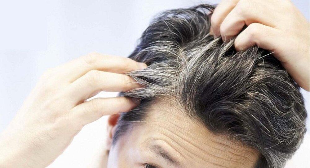 حقایقی در مورد سفیدی موها در جوانی