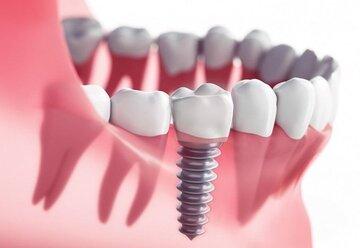 هزینه ایمپلنت دندان، آنچه باید بدانید