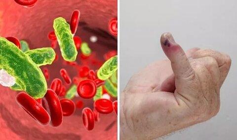 عفونت سپسیس؛ عامل مرگومیر کرونایی