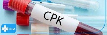 آسیبهای بدن خود را با آزمایش CPK تشخیص دهید!