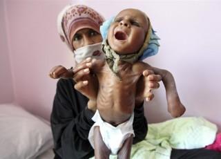 شهادت ۱۴۰۰ کودک یمنی از ابتدای تجاوز سعودی تاکنون